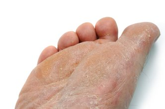 Pittsburgh Podiatrist | Pittsburgh Athlete's Foot | PA | Sciulli Foot and Ankle Clinics |